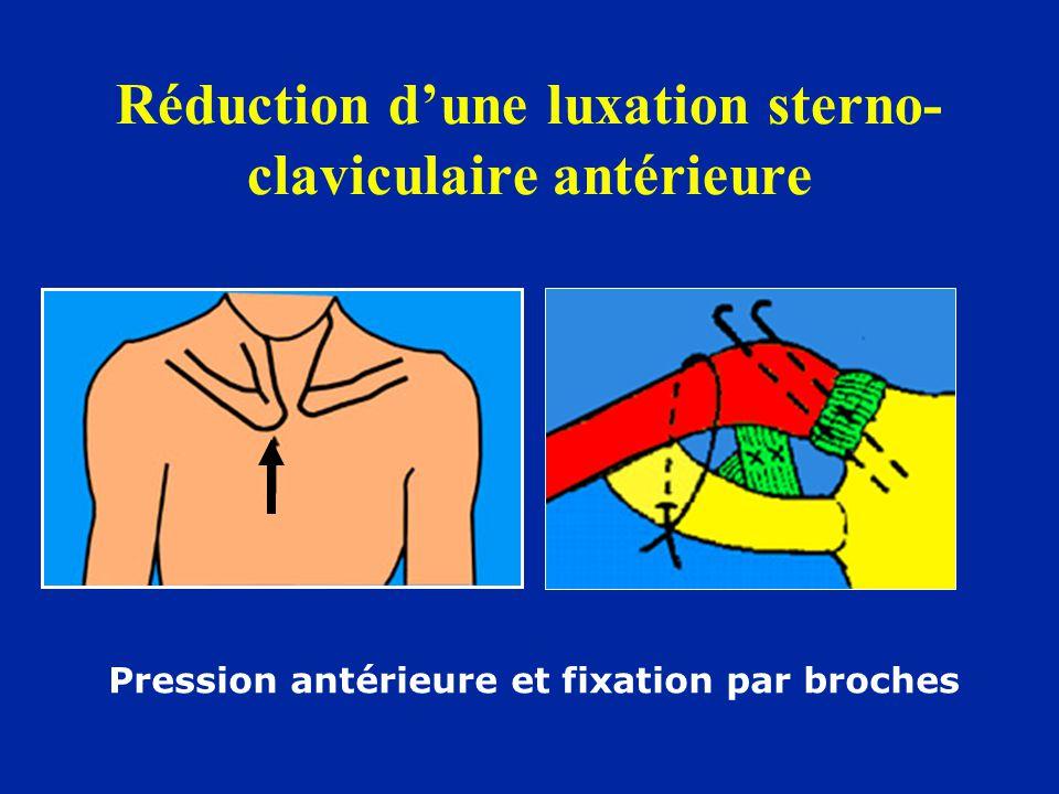 Réduction d'une luxation sterno- claviculaire antérieure Pression antérieure et fixation par broches