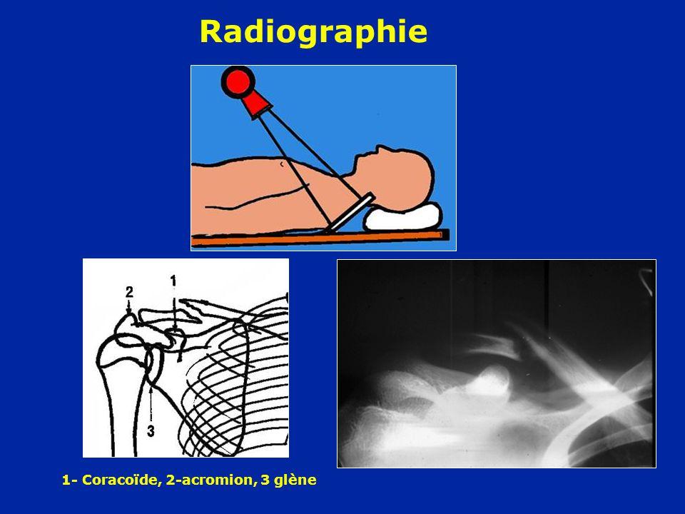 Déplacements typiques - Fragment interne soulevé (SCM) - L'épaule s'affaisse (poids, pectoral) - Le fragment distal bascule et chevauche - Attitude des traumatisés du M.