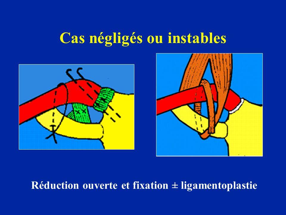 Cas négligés ou instables Réduction ouverte et fixation ± ligamentoplastie