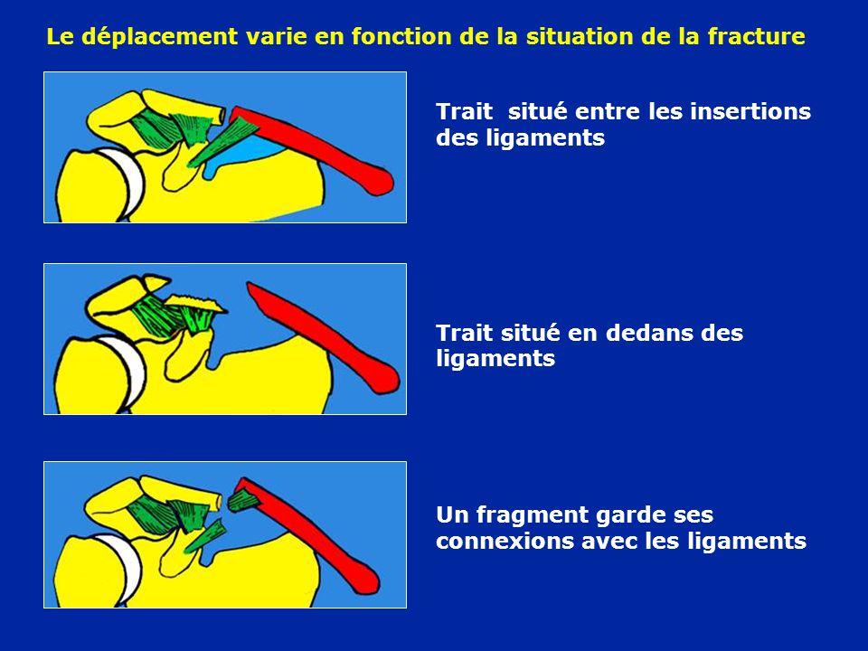 Trait situé entre les insertions des ligaments Trait situé en dedans des ligaments Un fragment garde ses connexions avec les ligaments Le déplacement varie en fonction de la situation de la fracture