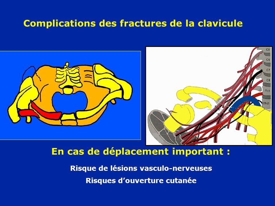 Complications des fractures de la clavicule Risque de lésions vasculo-nerveuses Risques d'ouverture cutanée En cas de déplacement important :
