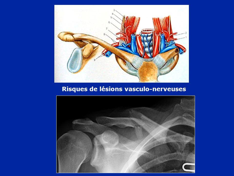 Traitement orthopédique Abduction + antépulsion+ Rotation neutre