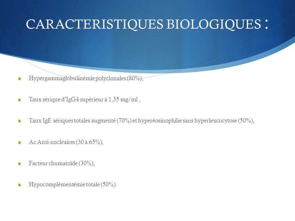 CARACTERISTIQUES BIOLOGIQUES :  Hypergammaglobulinémie polyclonales (80%),  Taux sérique d'IgG4 supérieur à 1,35 mg/ml,  Taux IgE sériques totales