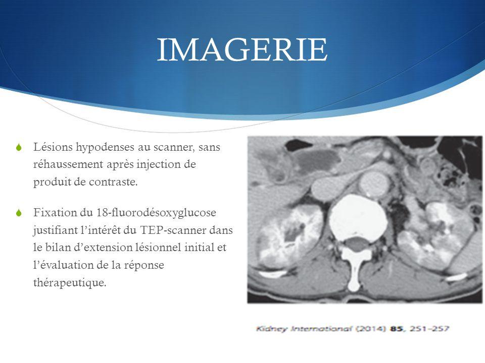 IMAGERIE  Lésions hypodenses au scanner, sans réhaussement après injection de produit de contraste.  Fixation du 18-fluorodésoxyglucose justifiant l