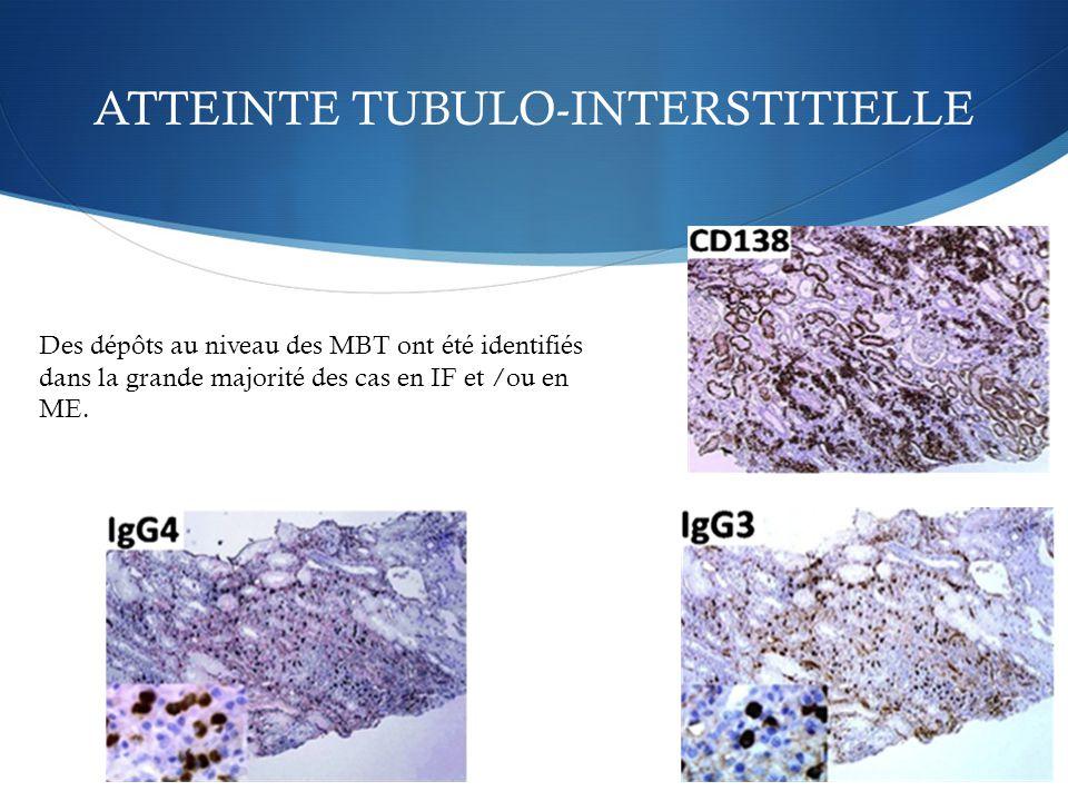 ATTEINTE TUBULO-INTERSTITIELLE Des dépôts au niveau des MBT ont été identifiés dans la grande majorité des cas en IF et /ou en ME.
