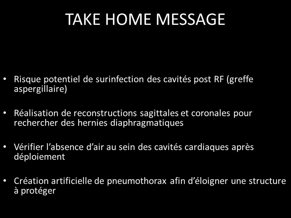 TAKE HOME MESSAGE • Risque potentiel de surinfection des cavités post RF (greffe aspergillaire) • Réalisation de reconstructions sagittales et coronal