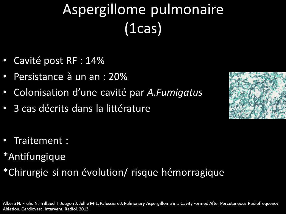 Aspergillome pulmonaire (1cas) • Cavité post RF : 14% • Persistance à un an : 20% • Colonisation d'une cavité par A.Fumigatus • 3 cas décrits dans la