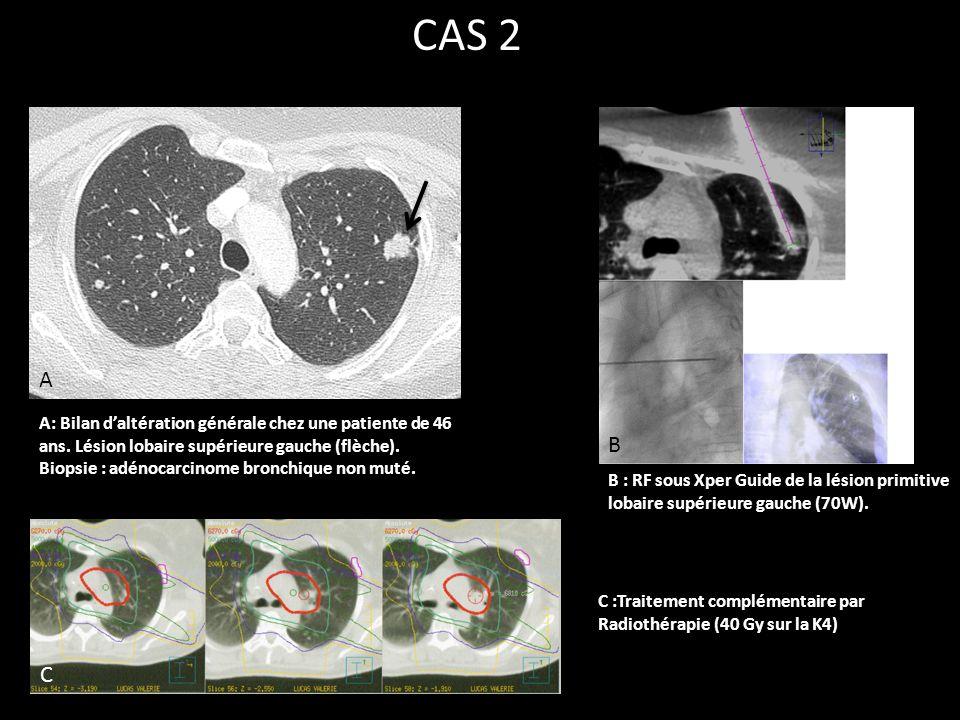 A: Bilan d'altération générale chez une patiente de 46 ans. Lésion lobaire supérieure gauche (flèche). Biopsie : adénocarcinome bronchique non muté. A