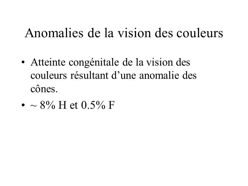 Anomalies de la vision des couleurs •Atteinte congénitale de la vision des couleurs résultant d'une anomalie des cônes. •~ 8% H et 0.5% F
