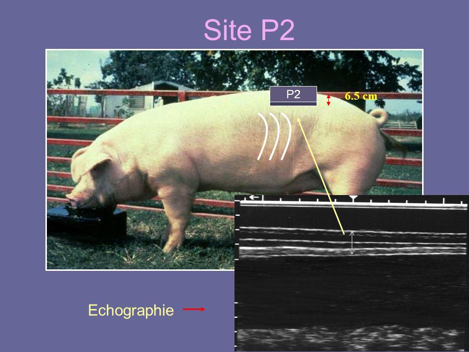 Site P2 6.5 cm P2 Echographie