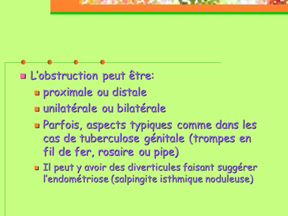  L'obstruction peut être:  proximale ou distale  unilatérale ou bilatérale  Parfois, aspects typiques comme dans les cas de tuberculose génitale (trompes en fil de fer, rosaire ou pipe)   Il peut y avoir des diverticules faisant suggérer l'endométriose (salpingite isthmique noduleuse) 