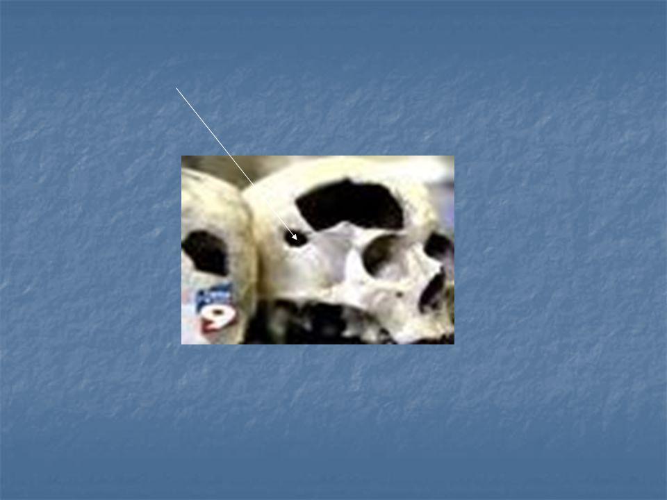 La Tuberculose « peste blanche » « consomption » « phtisie »