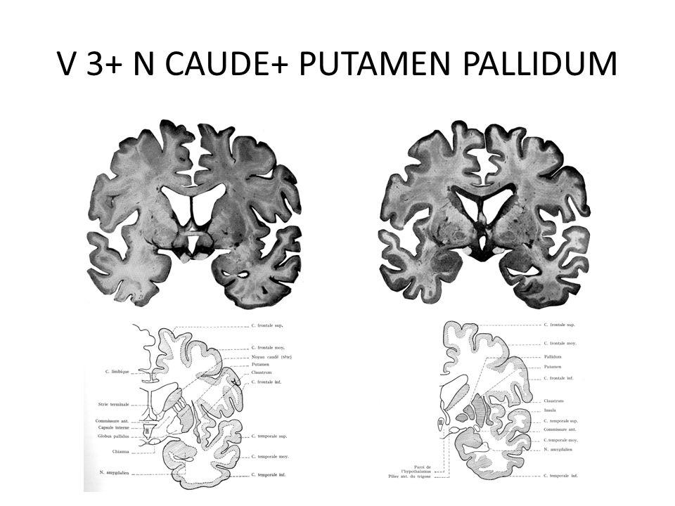 V 3+ N CAUDE+ PUTAMEN PALLIDUM
