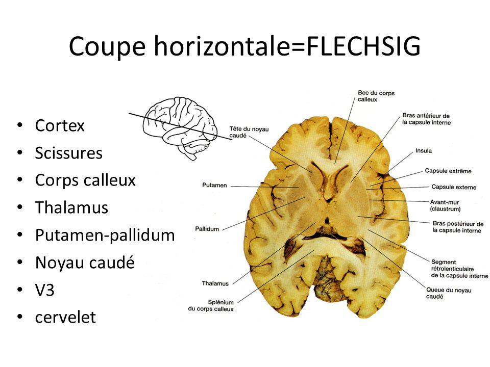 Coupe horizontale=FLECHSIG • Cortex • Scissures • Corps calleux • Thalamus • Putamen-pallidum • Noyau caudé • V3 • cervelet