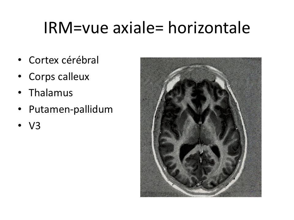 IRM=vue axiale= horizontale • Cortex cérébral • Corps calleux • Thalamus • Putamen-pallidum • V3