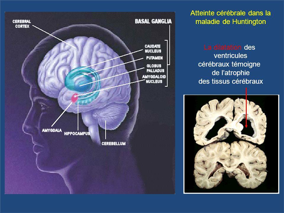 Atteinte cérébrale dans la maladie de Huntington La dilatation des ventricules cérébraux témoigne de l'atrophie des tissus cérébraux