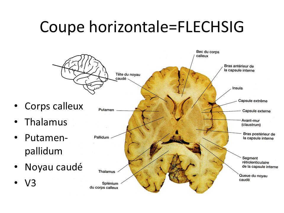 Coupe frontale = coronale = CHARCOT • Une des coupes frontales • Substance grise • Substance blanche • Capsule interne • Corona radiata • Scissure inter hémisphérique • Faux du cerveau • Corps calleux • V3