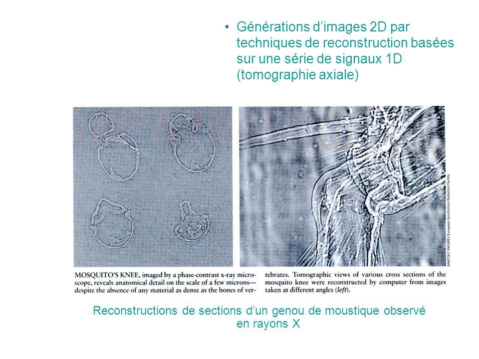•Générations d'images 2D par techniques de reconstruction basées sur une série de signaux 1D (tomographie axiale) Reconstructions de sections d'un genou de moustique observé en rayons X