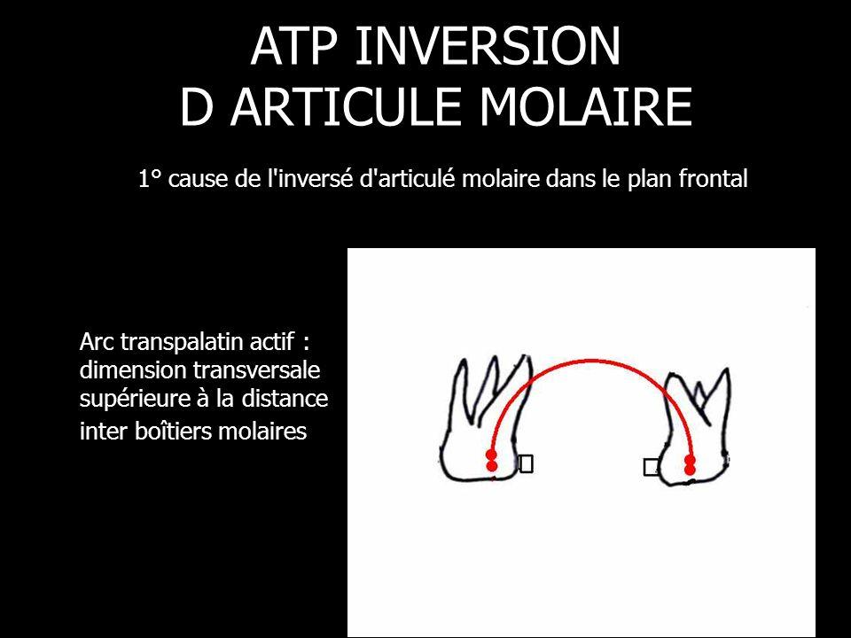 Arc transpalatin actif : dimension transversale supérieure à la distance inter boîtiers molaires ATP INVERSION D ARTICULE MOLAIRE 1° cause de l'invers