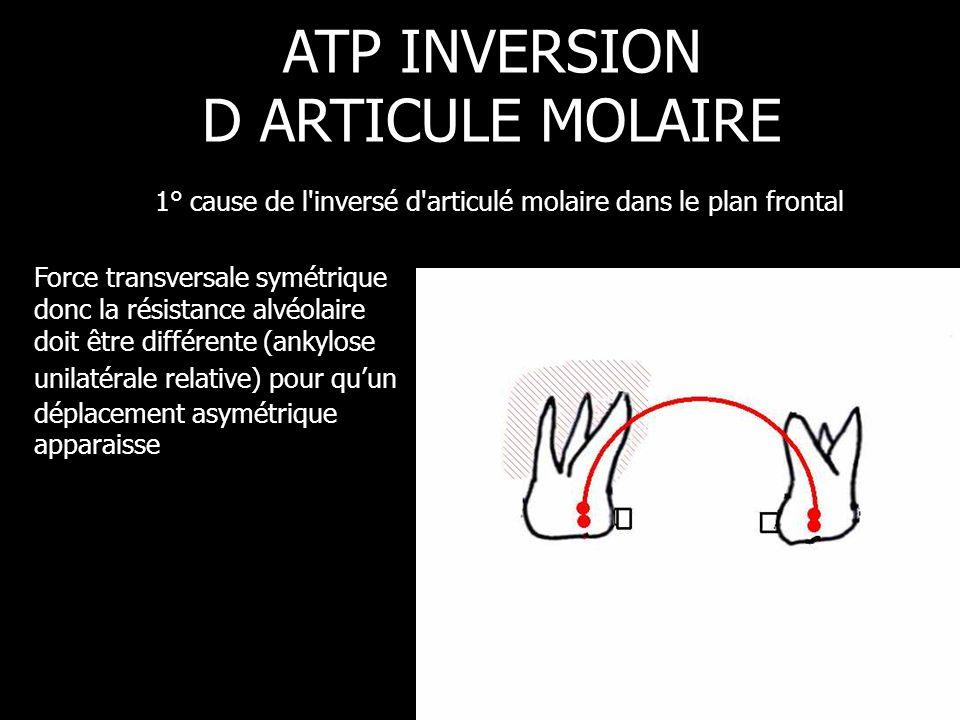 Force transversale symétrique donc la résistance alvéolaire doit être différente (ankylose unilatérale relative) pour qu'un déplacement asymétrique ap