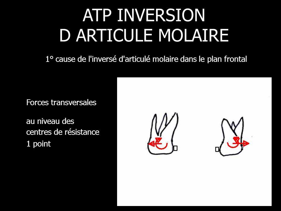 Forces transversales au niveau des centres de résistance 1 point ATP INVERSION D ARTICULE MOLAIRE 1° cause de l'inversé d'articulé molaire dans le pla