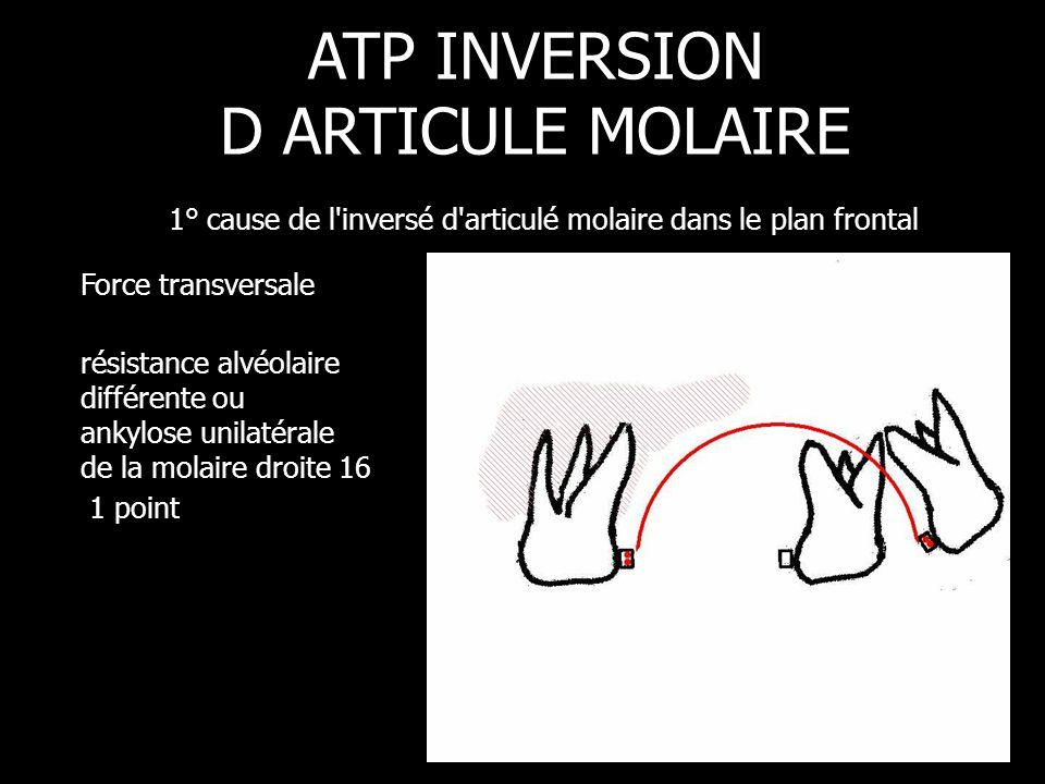 Force transversale résistance alvéolaire différente ou ankylose unilatérale de la molaire droite 16 1 point ATP INVERSION D ARTICULE MOLAIRE 1° cause
