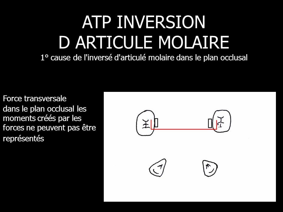 Force transversale dans le plan occlusal les moments créés par les forces ne peuvent pas être représentés ATP INVERSION D ARTICULE MOLAIRE 1° cause de