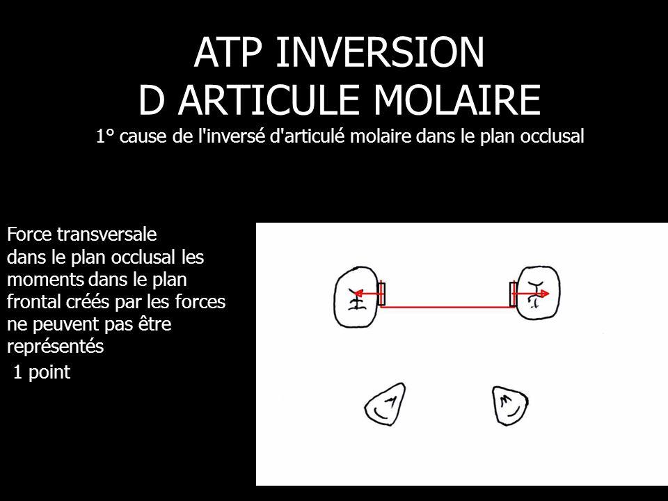 Force transversale dans le plan occlusal les moments dans le plan frontal créés par les forces ne peuvent pas être représentés 1 point ATP INVERSION D
