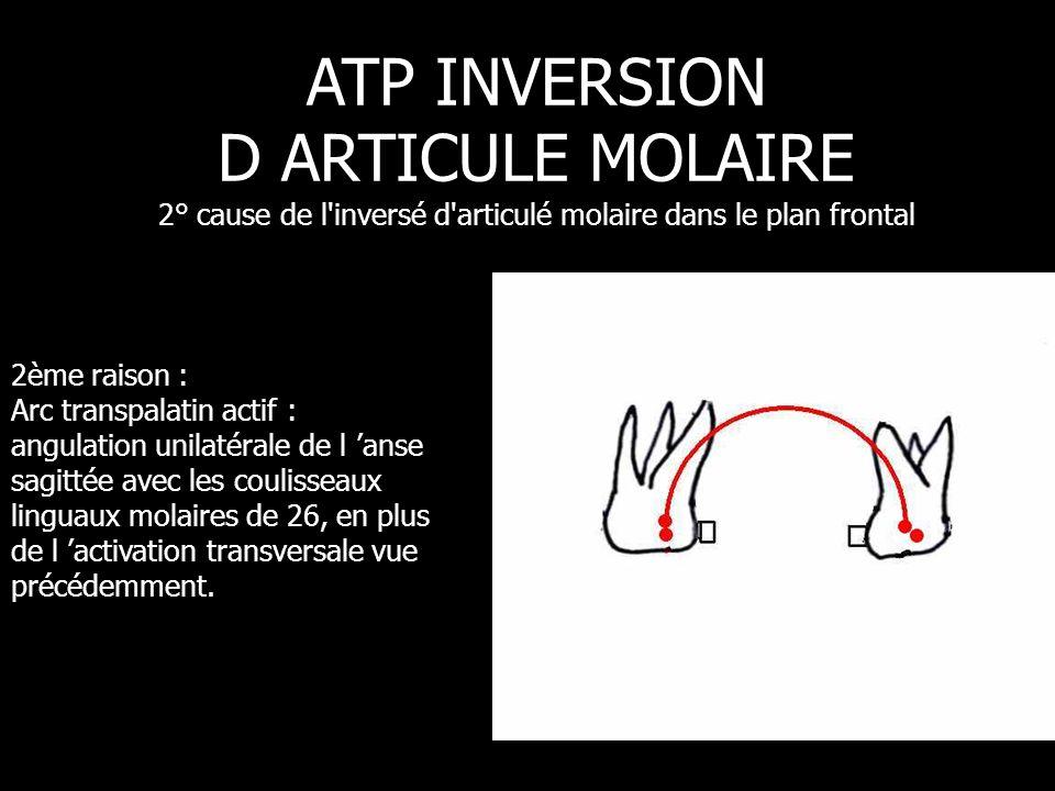 2ème raison : Arc transpalatin actif : angulation unilatérale de l 'anse sagittée avec les coulisseaux linguaux molaires de 26, en plus de l 'activati