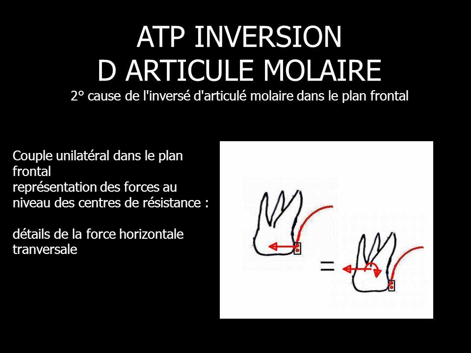 Pression 30gf ATP INVERSION D ARTICULE MOLAIRE 2° cause de l'inversé d'articulé molaire dans le plan frontal Couple unilatéral dans le plan frontal re