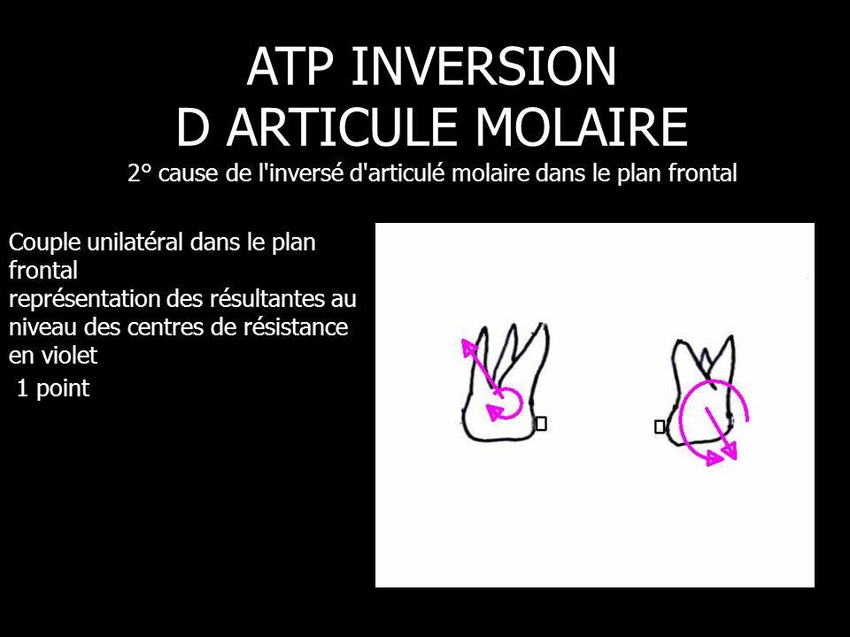 Couple unilatéral dans le plan frontal représentation des résultantes au niveau des centres de résistance en violet 1 point ATP INVERSION D ARTICULE M