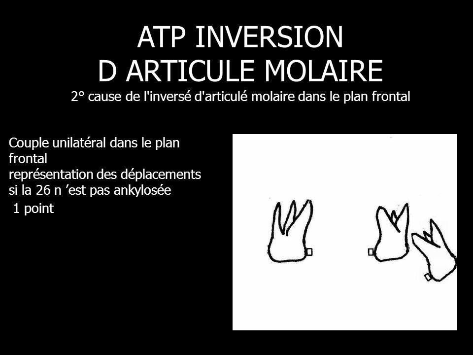 Couple unilatéral dans le plan frontal représentation des déplacements si la 26 n 'est pas ankylosée 1 point ATP INVERSION D ARTICULE MOLAIRE 2° cause