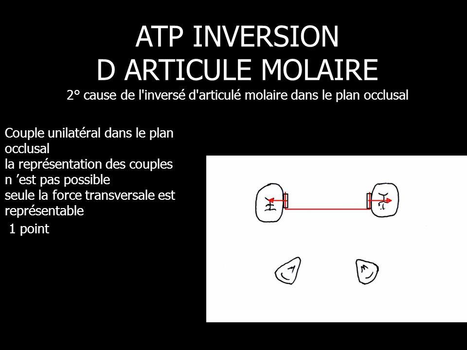 Couple unilatéral dans le plan occlusal la représentation des couples n 'est pas possible seule la force transversale est représentable 1 point ATP IN