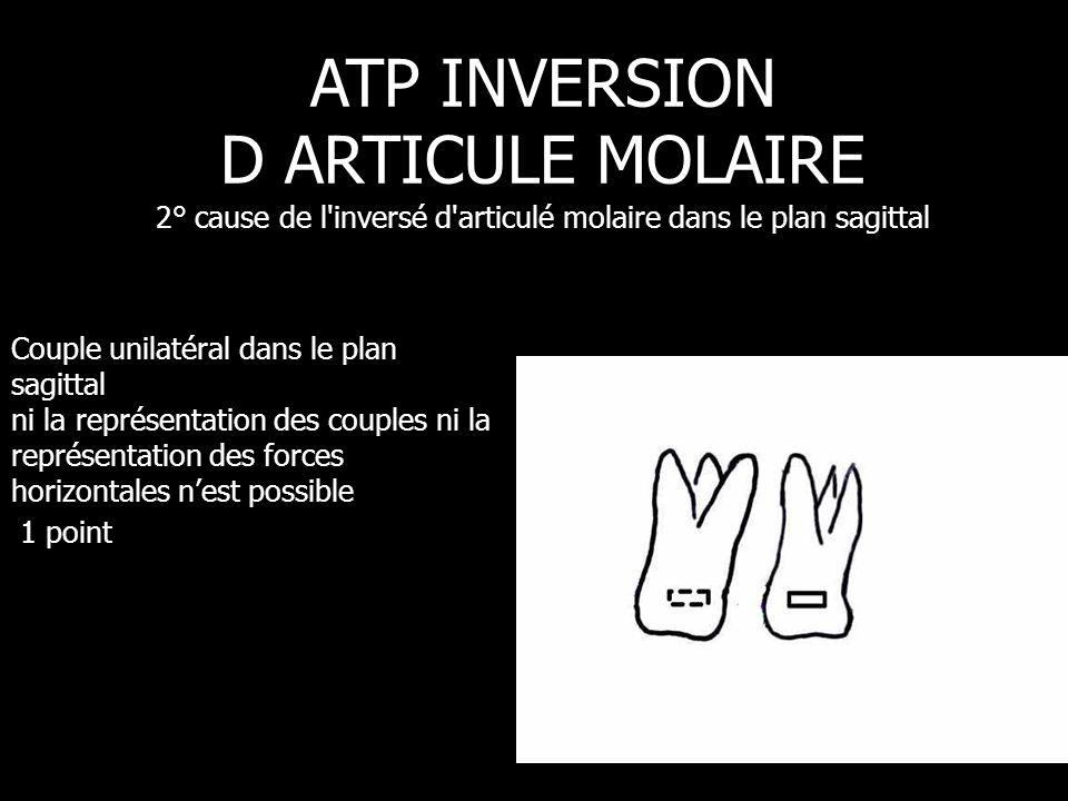 Couple unilatéral dans le plan sagittal ni la représentation des couples ni la représentation des forces horizontales n'est possible 1 point ATP INVER