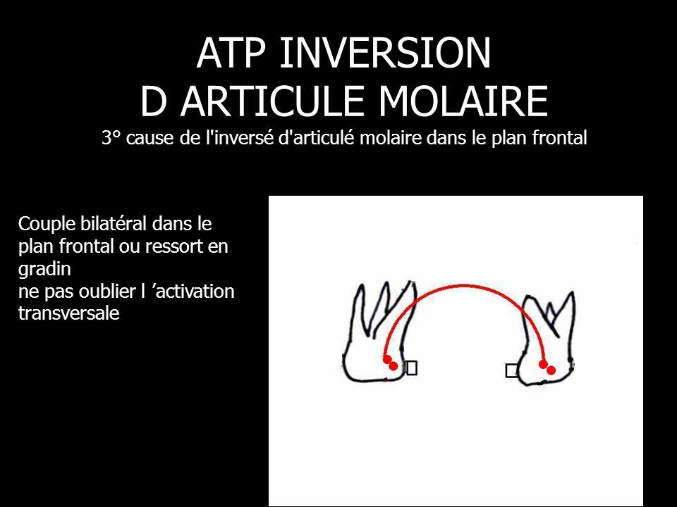 Couple bilatéral dans le plan frontal ou ressort en gradin ne pas oublier l 'activation transversale ATP INVERSION D ARTICULE MOLAIRE 3° cause de l'in