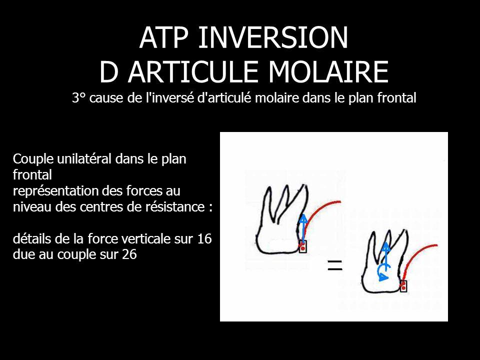 Pression 30gf ATP INVERSION D ARTICULE MOLAIRE 3° cause de l'inversé d'articulé molaire dans le plan frontal Couple unilatéral dans le plan frontal re