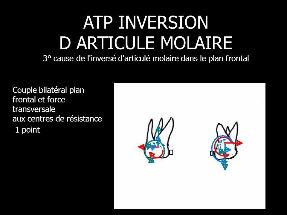 Couple bilatéral plan frontal et force transversale aux centres de résistance 1 point ATP INVERSION D ARTICULE MOLAIRE 3° cause de l'inversé d'articul