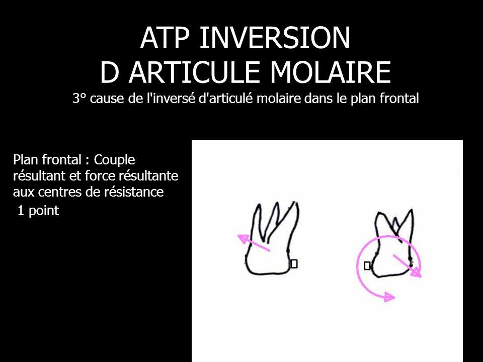 Plan frontal : Couple résultant et force résultante aux centres de résistance 1 point ATP INVERSION D ARTICULE MOLAIRE 3° cause de l'inversé d'articul