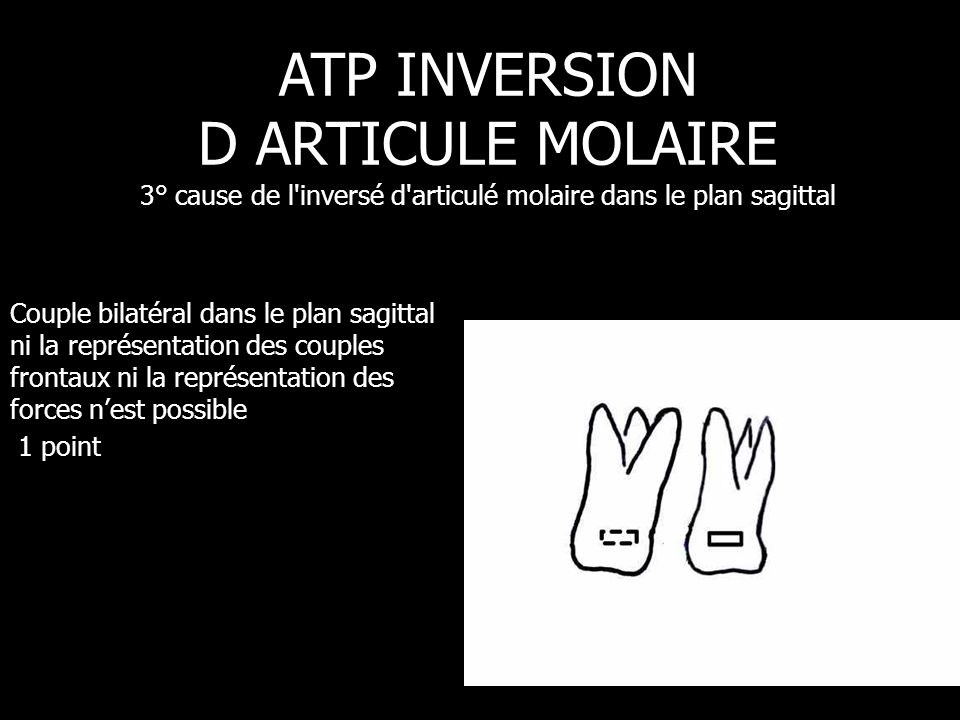 Couple bilatéral dans le plan sagittal ni la représentation des couples frontaux ni la représentation des forces n'est possible 1 point ATP INVERSION