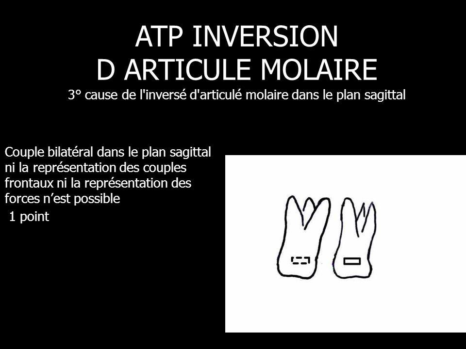 ATP passif mais appareil mandibulaire actif, on sort ici du sujet ATP INVERSION D ARTICULE MOLAIRE 4° cause de l inversé d articulé molaire dans le plan occlusal
