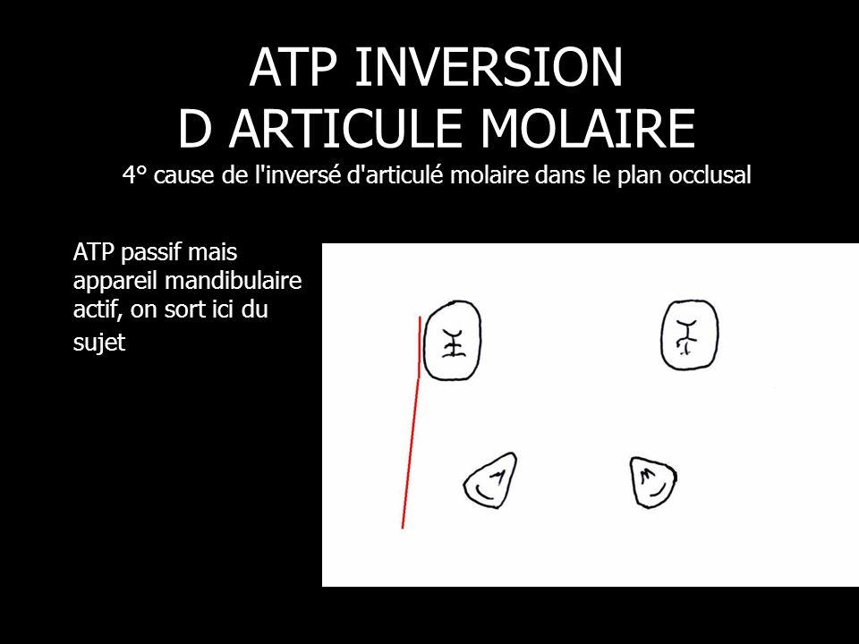 ATP passif mais appareil mandibulaire actif, on sort ici du sujet ATP INVERSION D ARTICULE MOLAIRE 4° cause de l'inversé d'articulé molaire dans le pl