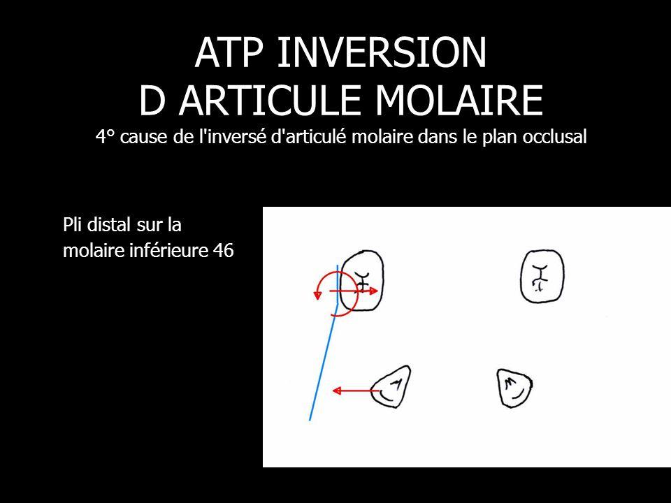 Pli distal sur la molaire inférieure 46 ATP INVERSION D ARTICULE MOLAIRE 4° cause de l'inversé d'articulé molaire dans le plan occlusal