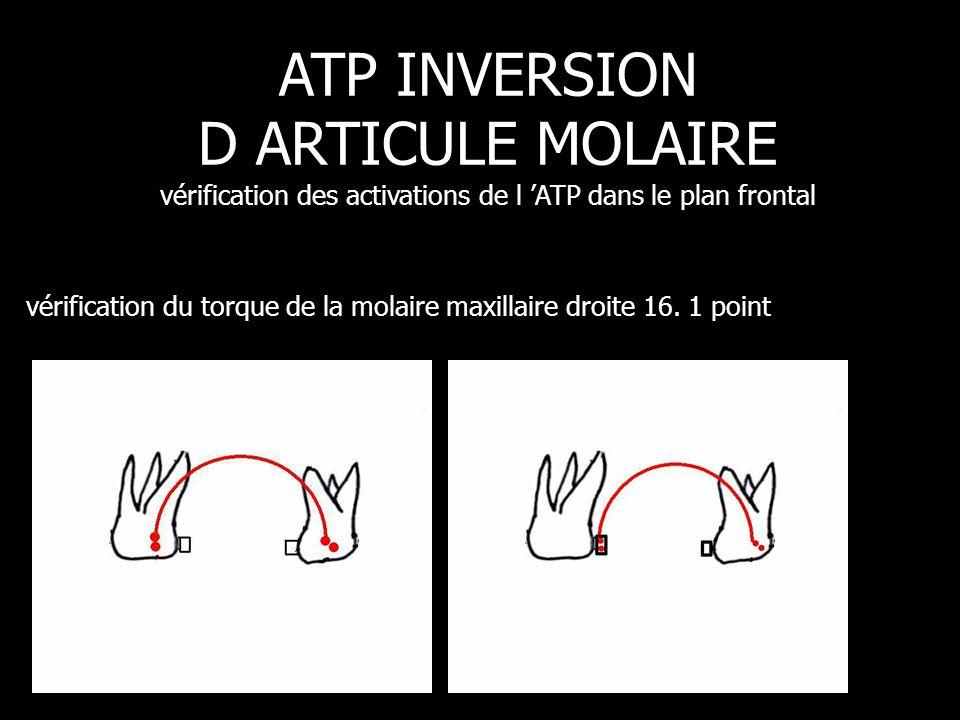 vérification du torque de la molaire maxillaire droite 16. 1 point ATP INVERSION D ARTICULE MOLAIRE vérification des activations de l 'ATP dans le pla