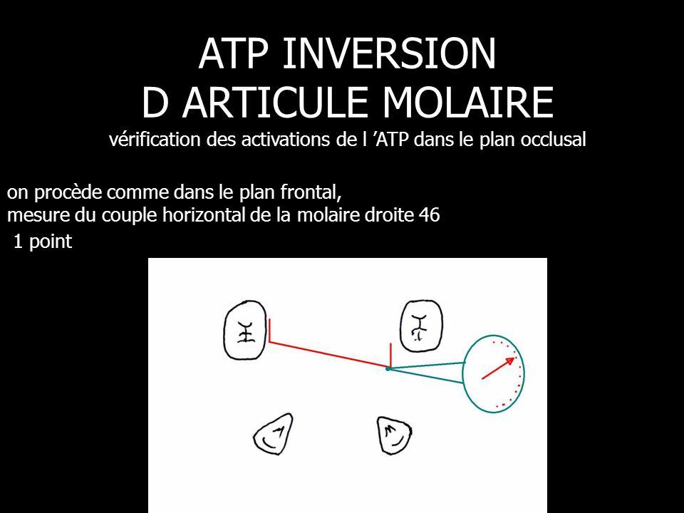 on procède comme dans le plan frontal, mesure du couple horizontal de la molaire droite 46 1 point ATP INVERSION D ARTICULE MOLAIRE vérification des a