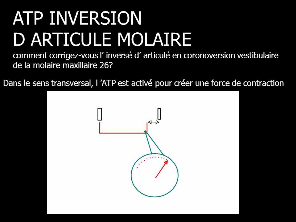 Dans le sens transversal, l 'ATP est activé pour créer une force de contraction ATP INVERSION D ARTICULE MOLAIRE comment corrigez-vous l' inversé d' a
