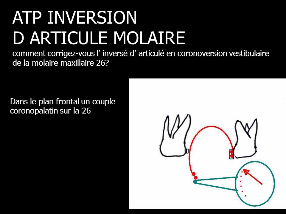 Dans le plan frontal un couple coronopalatin sur la 26 ATP INVERSION D ARTICULE MOLAIRE comment corrigez-vous l' inversé d' articulé en coronoversion