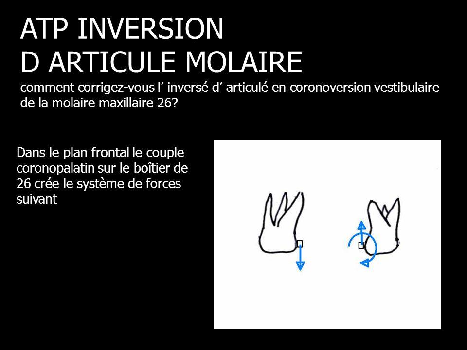 Dans le plan frontal le couple coronopalatin sur le boîtier de 26 crée le système de forces suivant ATP INVERSION D ARTICULE MOLAIRE comment corrigez-