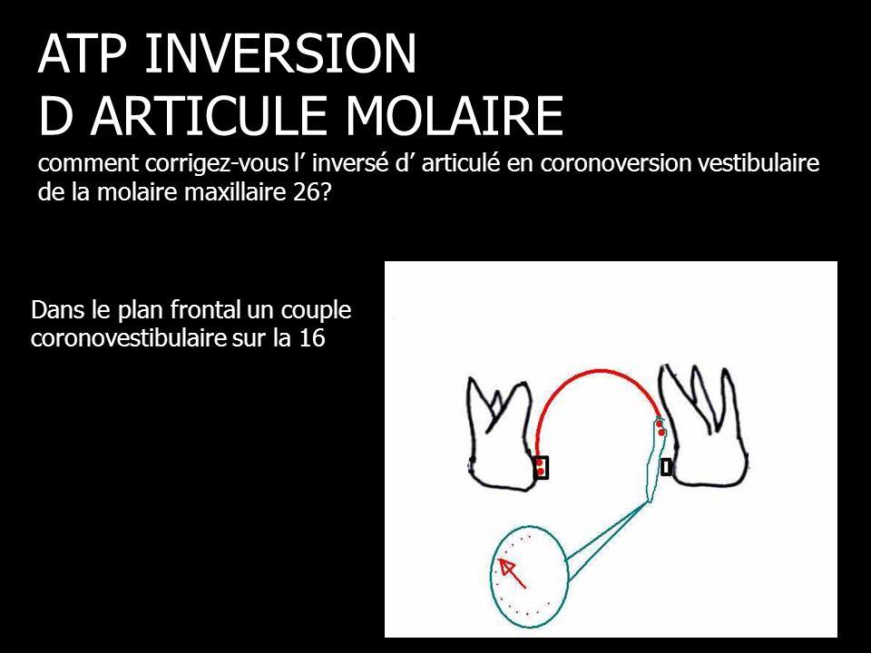 Dans le plan frontal un couple coronovestibulaire sur la 16 ATP INVERSION D ARTICULE MOLAIRE comment corrigez-vous l' inversé d' articulé en coronover