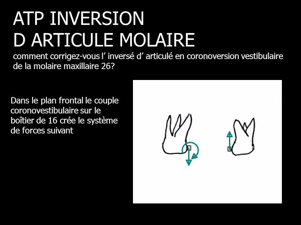 Dans le plan frontal le couple coronovestibulaire sur le boîtier de 16 crée le système de forces suivant ATP INVERSION D ARTICULE MOLAIRE comment corr