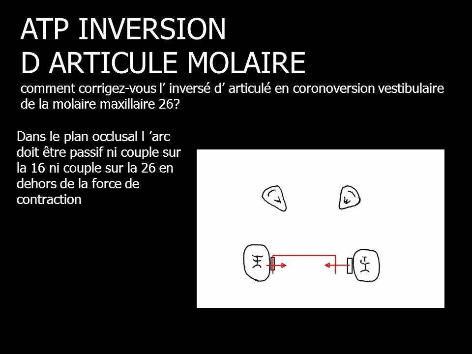 Dans le plan occlusal l 'arc doit être passif ni couple sur la 16 ni couple sur la 26 en dehors de la force de contraction ATP INVERSION D ARTICULE MO
